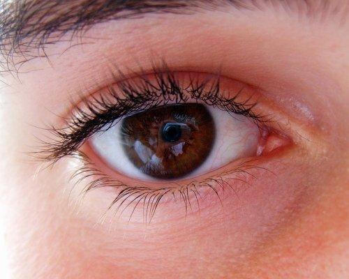 первые симптомы глаукомы глаза