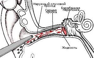 Серная пробка – симптомы и лечение.